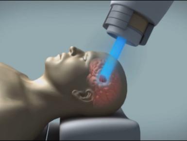 """La """"Terapia Protonica """"   una  nuova  arma  per  il trattamento  del cancro"""