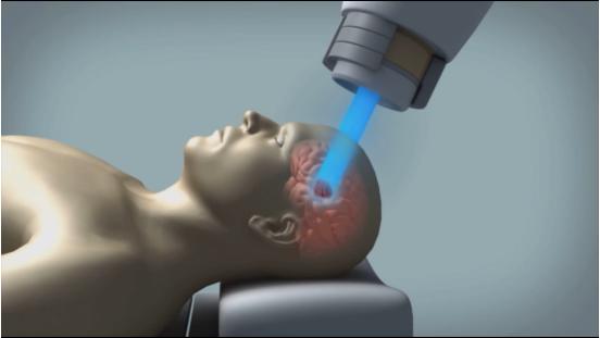 posizioni di trattamento del carcinoma della prostata protone